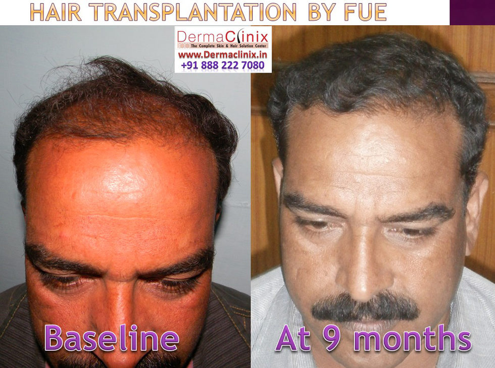 Hair Transplant Result Before And After At Dermaclinix